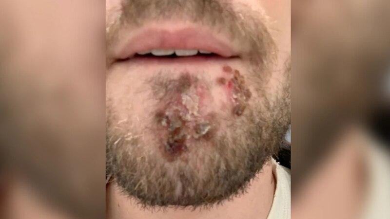 De no creer: usó la máquina de afeitar de un amigo por error y se contagió de una bacteria carnívora